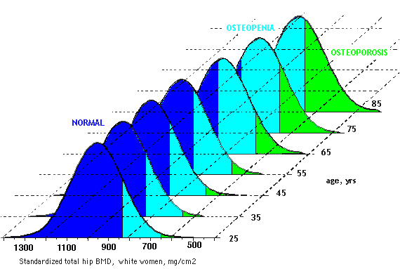 Age graph for osteoporosis